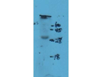 Anti-NKp44 antibody