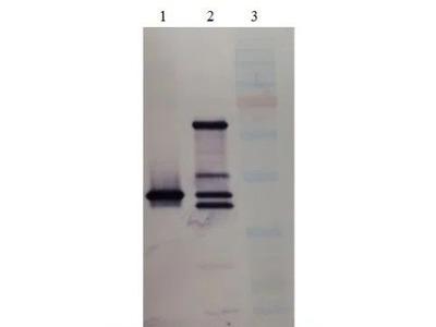 Anti-PAI-1 antibody