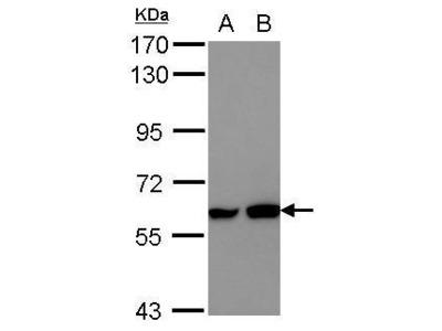 Anti-MEF2D antibody