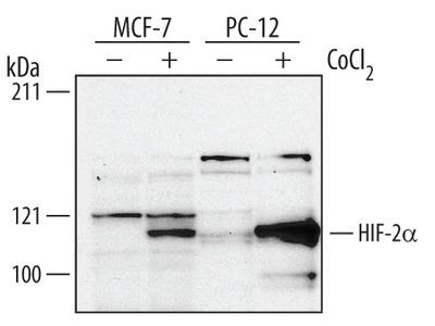 Human / Rat HIF-2 alpha / EPAS1 Antibody