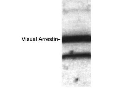 Anti-S-arrestin antibody