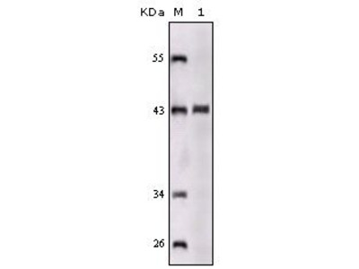 Anti-SorLA antibody [3B6B11]