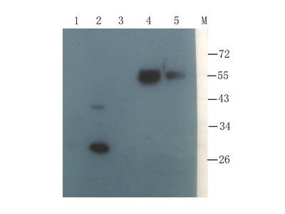 Anti-Collagen X antibody