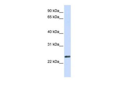 Anti-ERVWE1 antibody, N-term