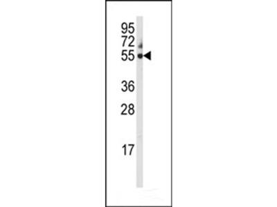 Anti-Cytochrome P450 3A5 antibody, C-term