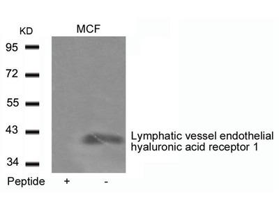 Anti-LYVE1 antibody