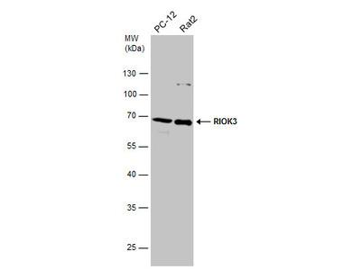 Anti-RIOK3 antibody
