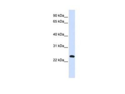 Anti-C20ORF103 antibody, Internal