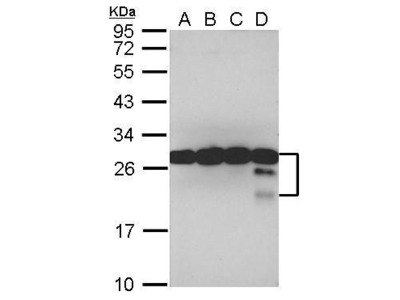 Anti-TPD52 antibody