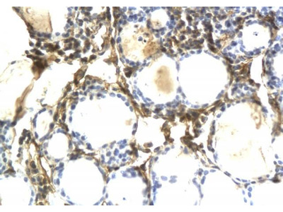 Anti-Osteopontin antibody
