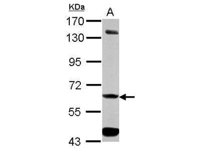 Anti-ALDH7A1 antibody