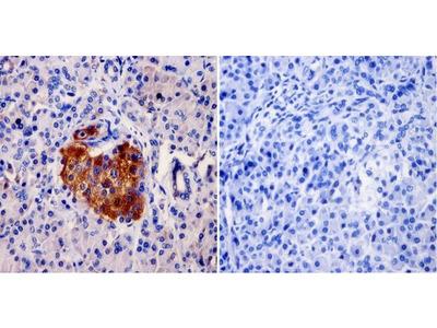 Anti-AKAP9 antibody [17G10]