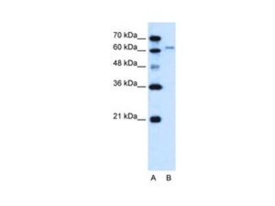 Anti-SLC15A4 antibody, N-term