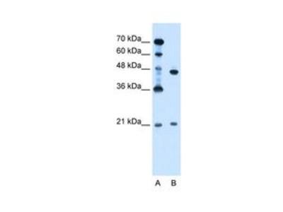 Anti-UBE2E2 antibody, N-term