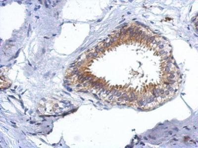 Anti-CCDC97 antibody