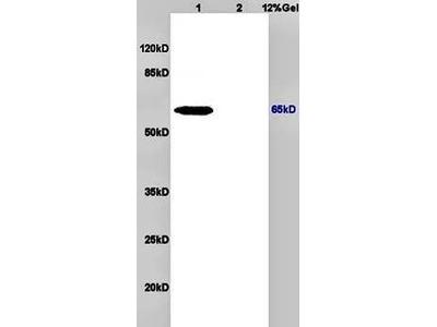 Anti-NIS antibody