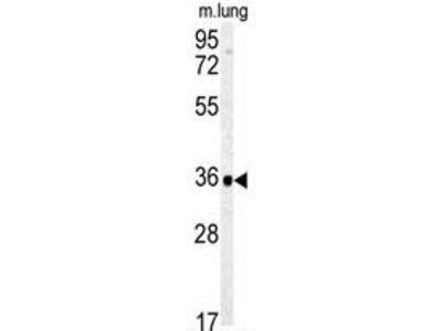 Anti-Carbonic anhydrase IV antibody, C-term