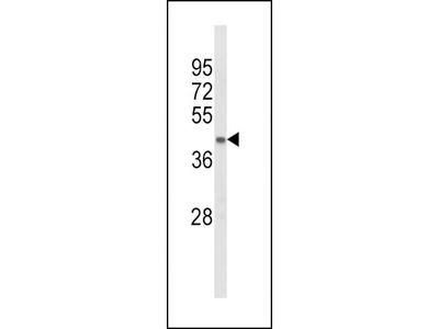Anti-ACADL antibody, Internal
