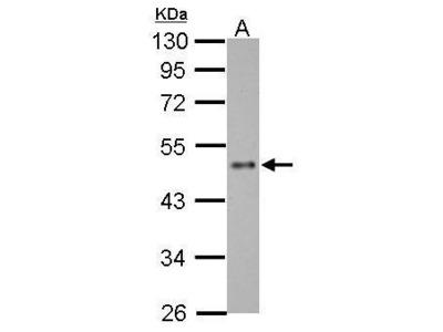 Anti-ZNF71 antibody