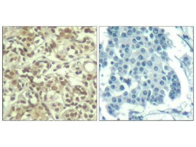 Anti-AKT (phospho Thr450) antibody