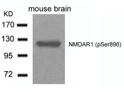 Anti-NMDAR1 (phospho Ser896) antibody