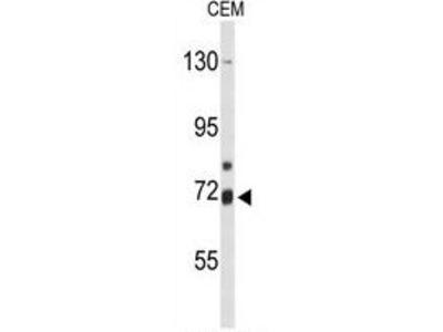 Anti-ALOX15B antibody, C-term