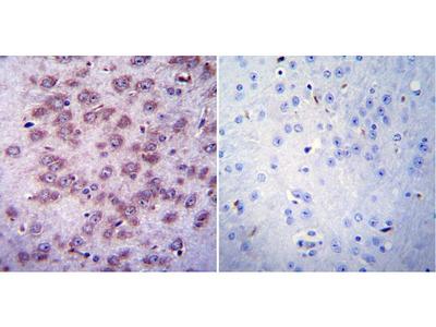 Anti-AChR antibody [88B]