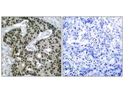 Anti-HSF1 (phospho Ser303) antibody