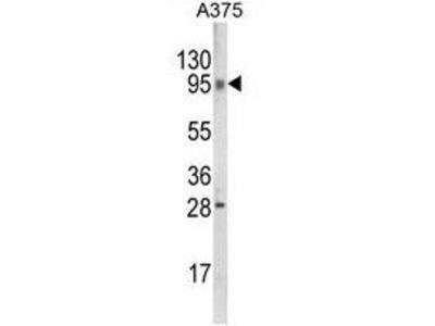 Anti-C6orf170 antibody, N-term