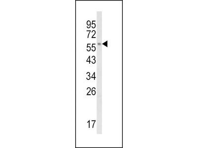 Anti-CYP8B1 antibody, C-term