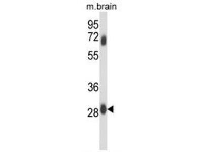 Anti-FCGR2C antibody, C-term
