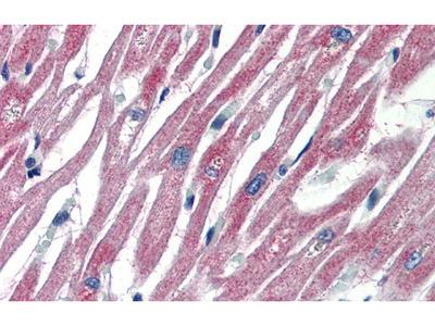Anti-PLEKHH2 antibody, C-term