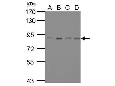 Anti-ATRIP antibody [11]