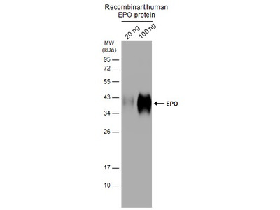 Anti-EPO antibody
