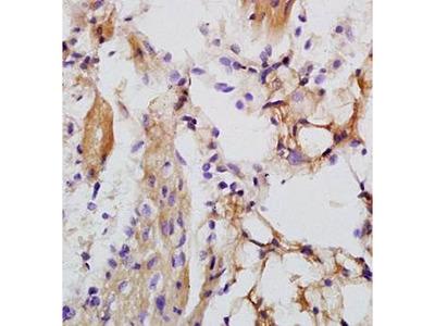 Anti-LRIG1 antibody