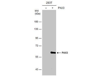 Anti-PAX3 antibody [C1C3]