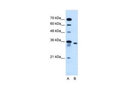 Anti-SLC25A32 antibody, N-term