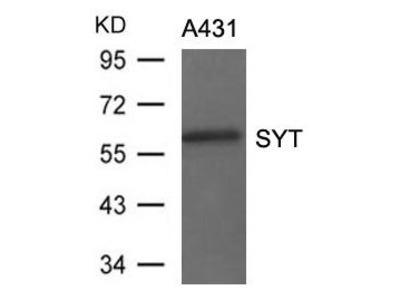 Anti-SS18 antibody