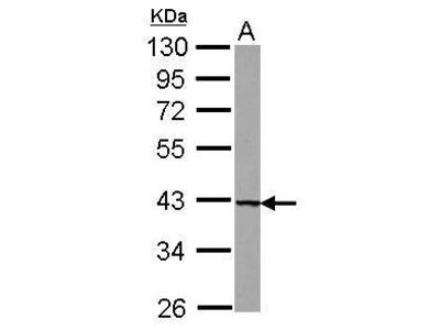 Anti-UROD antibody [N3C3]