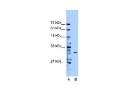 Anti-METTL1 antibody, Internal