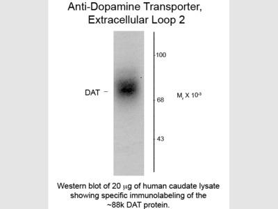 Dopamine Transporter Antibody