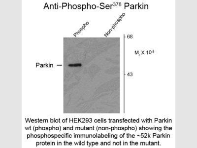 Parkin phospho S378 Antibody