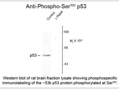 p53 phospho S392 Antibody