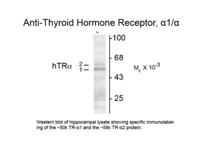 Thyroid Hormone Receptor alpha 1/2 Antibody