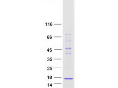 SNRPD2 (NM_004597) Human Recombinant Protein