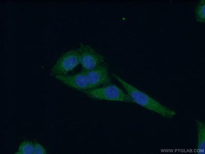WDR16 Antibody