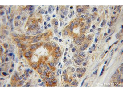 CTDSP2 antibody