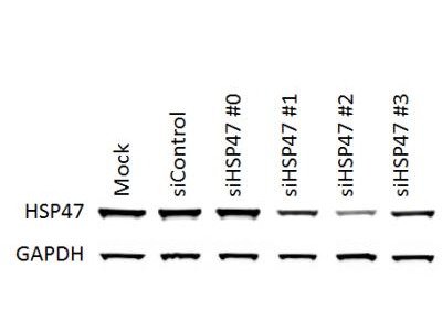 Detection of HSP47 Knockdown using siRNA in NIH3T3