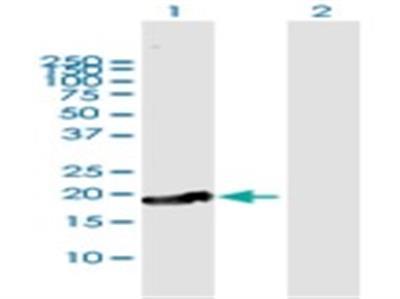 CTAG1A Antibody