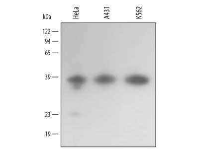 Annexin A10 Antibody